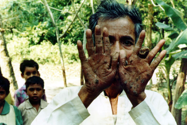 A Person Suffering From Effects of Arsenic Contaminations